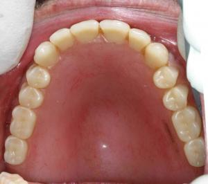 Available Dental Implant Options